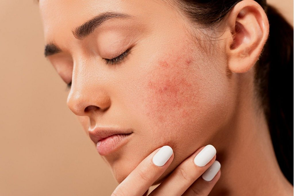 Treat Acne In Early Stage.